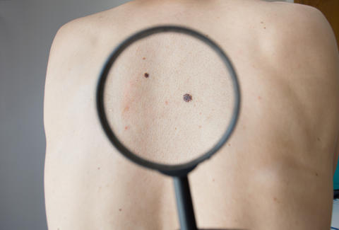 A New Algorithm Has Beaten 21 Doctors At Spotting Skin Cancer