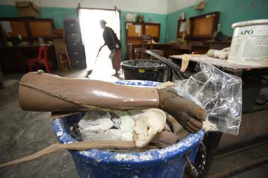 A prosthetic leg.