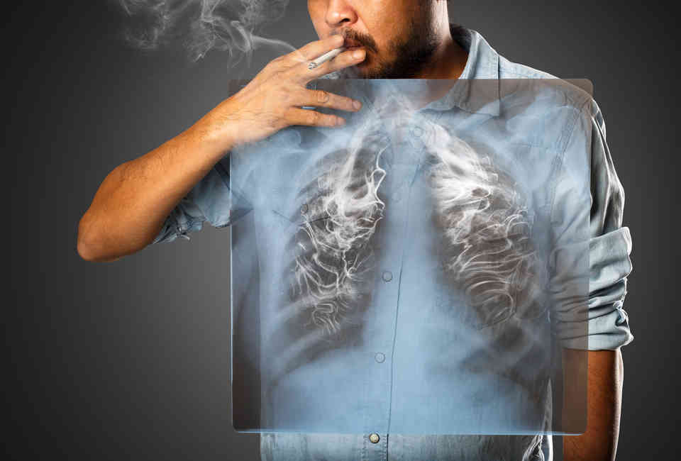 The Amount of Time It Takes Your Lungs to Return to Normal