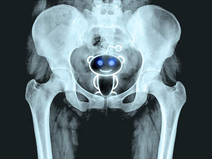 Reddit alien in x-ray of a person's butt