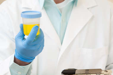 doctor holding urine sample