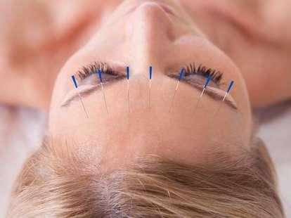 acupunture headache