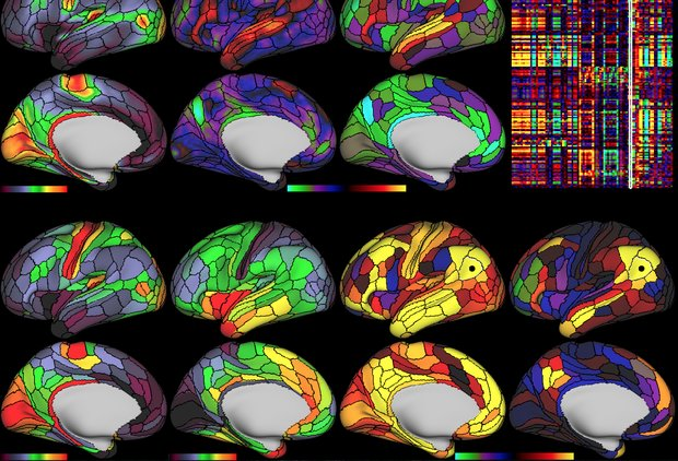 This Is the Most Detailed Map of the Human Brain. Ever.