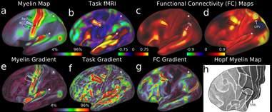brain map myelin