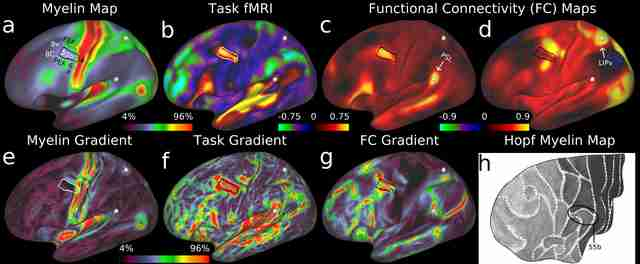 brain map myelin