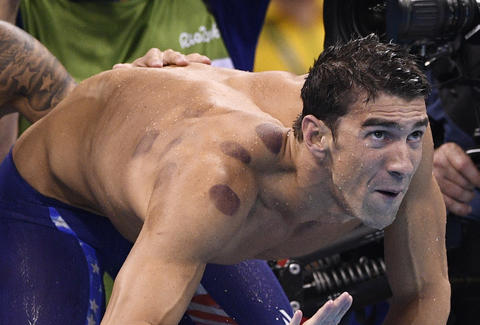 Michael Phelps Bruises Cupping Rio 2016