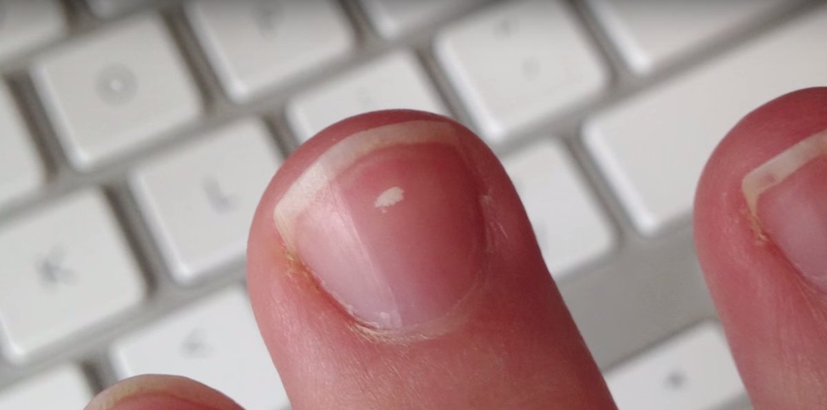 What Do Those White Marks on Your Nails Mean? - Thrillist
