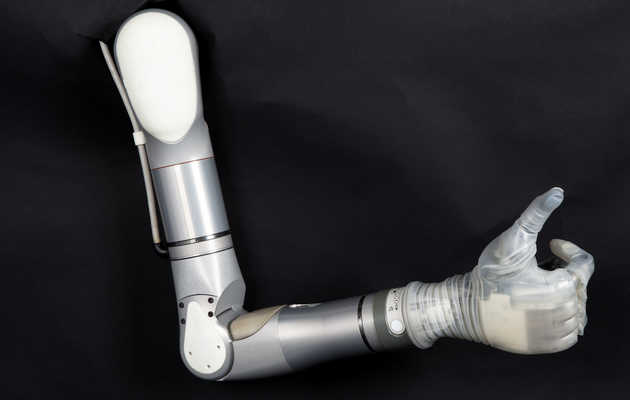 This Real-Life Bionic Arm Is Named After Luke Skywalker