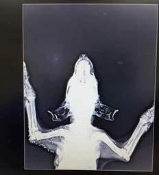X-ray of shot dog