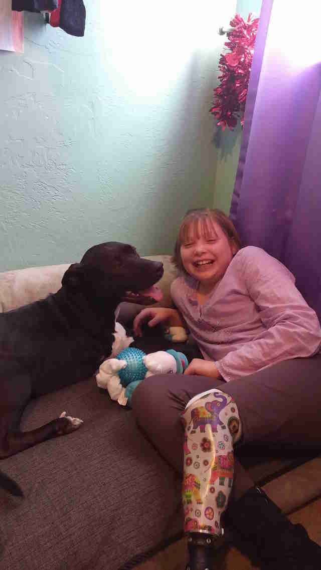 girl who lost her leg gets a three-legged dog