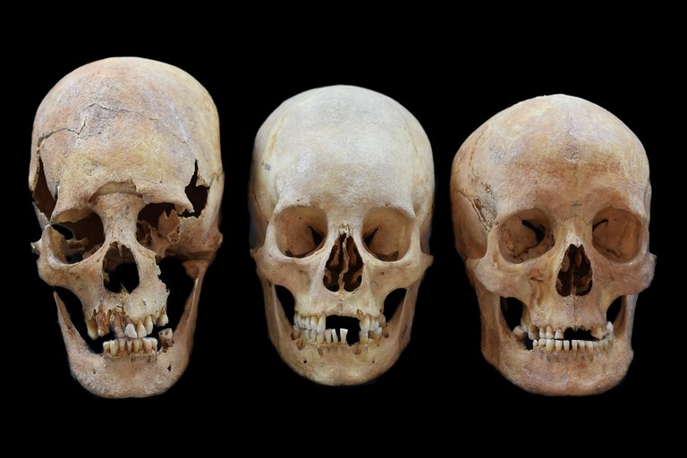 Medieval Women With Artificially Deformed Skulls Migrated to Form Strategic Alliances