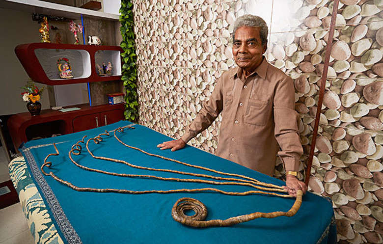 Man With World\'s Longest Fingernails Cuts Nails Off After 60 Years ...