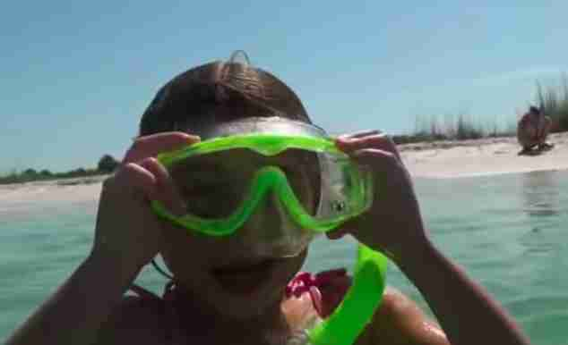 Snorkeler at summer camp who found sea urchin with hair clip