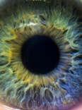 Eyeball, nanorobots